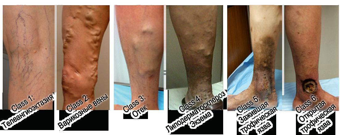 Народные средства лечения тромбоза воротной вены